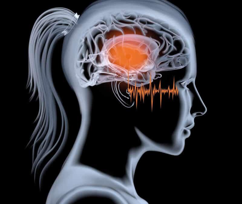 TMS and Tinnitus
